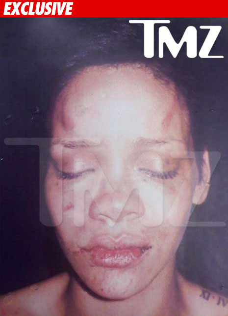 0219_rihanna_photo_beating_ex_01